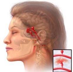 brain%20aneurysm